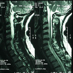 MRI of the Cervical Spine.